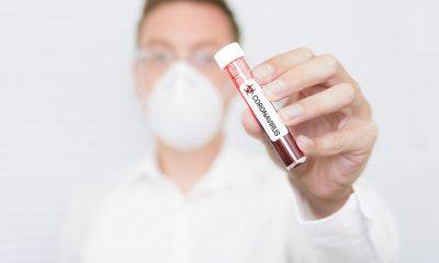 MAPFRE dona kits de diagnóstico molecular SARS-CoV2 para el Minsa